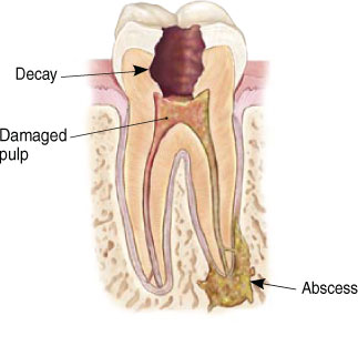 causes of need for root canal treatment